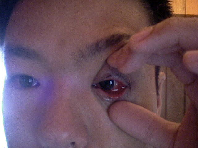 Asia Journal / Eye Infection Test Page